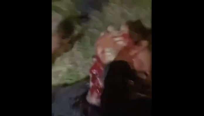 Bassem Braiki tabassé par Sadek et au moins 3 autres personnes à Vénissieux