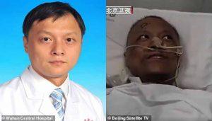 Coronavirus la peau de deux médecins chinois infectés devient noire 2
