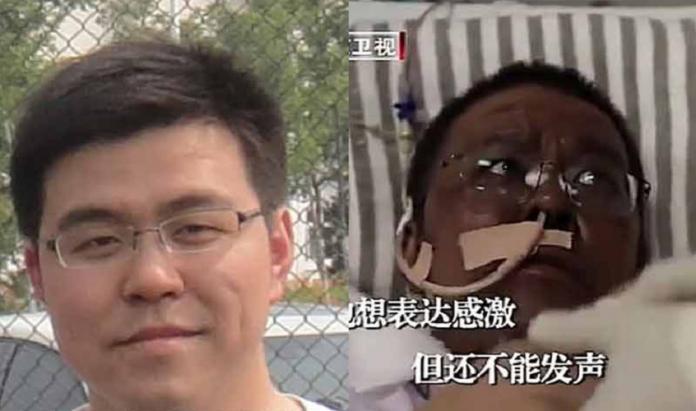 Coronavirus : la peau de deux médecins chinois infectés devient noire
