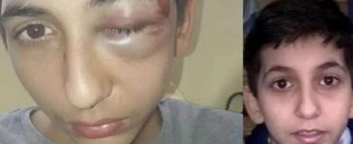 Gabriel, 14 ans, hospitalisé après avoir été roué de coups par la police