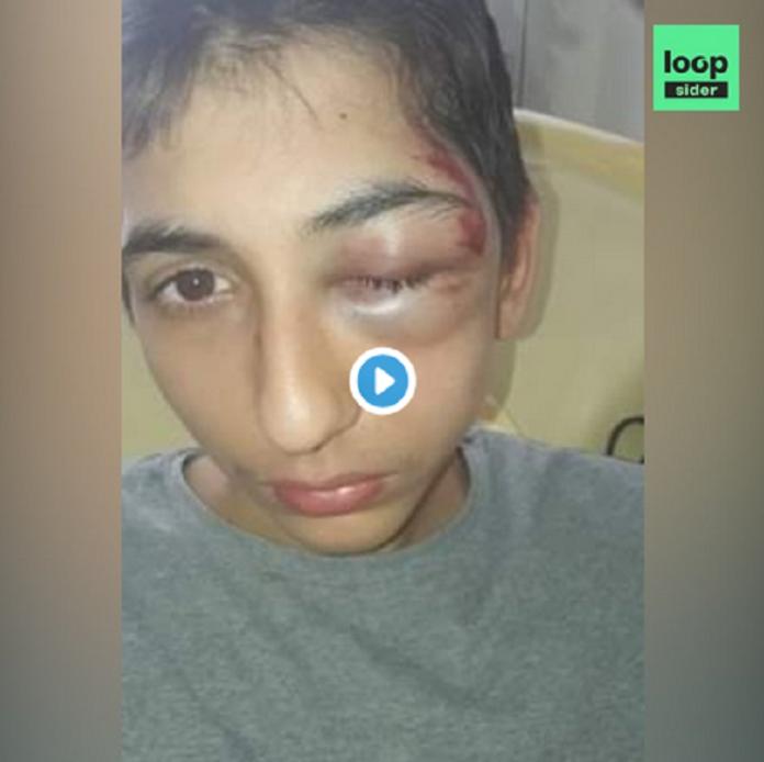 Gabriel, 14 ans, frappé par la police et hospitalisé, témoigne pour la première fois - VIDÉO