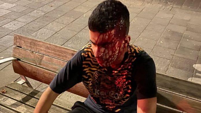 Toulouse : Salim, 18 ans, sauve une fille victime d'un viol puis se fait rouer de coups