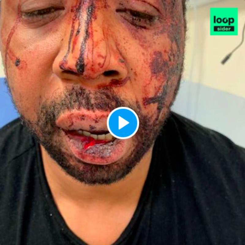 Policiers accusés de violences racistes : Darmanin se prononce