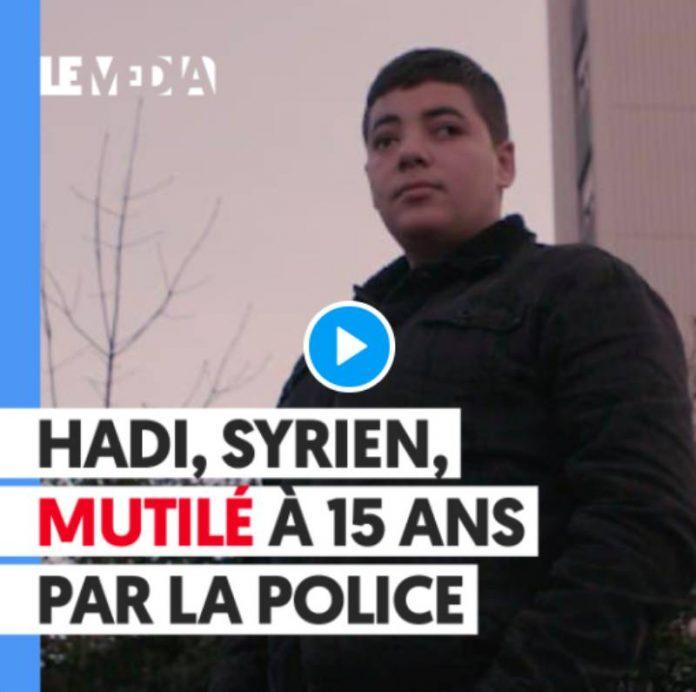 Hadi, jeune syrien de 15 ans éborgné par la police française - VIDEO