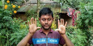 Bangladesh : les hommes de cette famille n'ont pas d'empreintes digitales