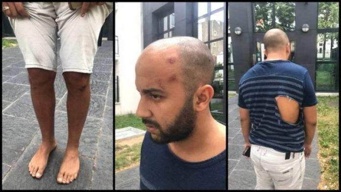 «Espèce de sale Arabe ! » - Ali dénonce le comportement raciste de la BAC d'Argenteuil