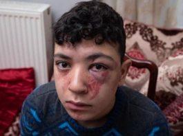 Mounaim 19 ans tabassé par 5 policiers, la justice classe la plainte sans suite - VIDEO