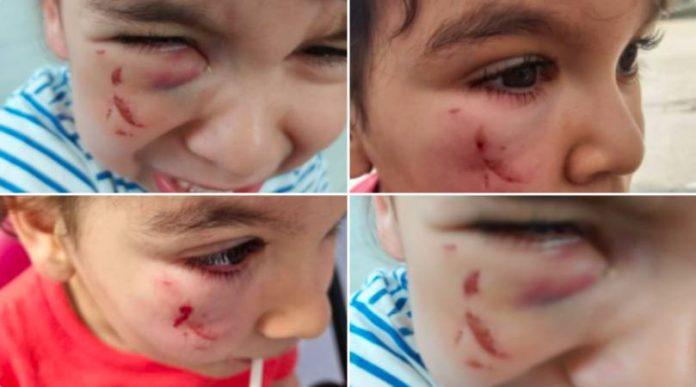 Paris une toxicomane agresse un enfant de 2 ans dans sa poussette