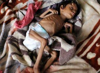 Yémen - un enfant meurt toutes les dix minutes de malnutrition